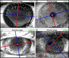 Figure 2. Projection of Placido disc mires on (A) a normal cornea with crisp mires and minimal astigmatism, (B) a cornea with surface dryness, (C) a cornea with regular against-the-rule astigmatism within a full-thickness corneal transplant, and (D) a cornea with irregular astigmatism within a full-thickness corneal transplant. Placido images can help guide selective suture removal; for example, the sutures in (C) could be removed at 3 o'clock and 9 o'clock, clinical course permitting, to…