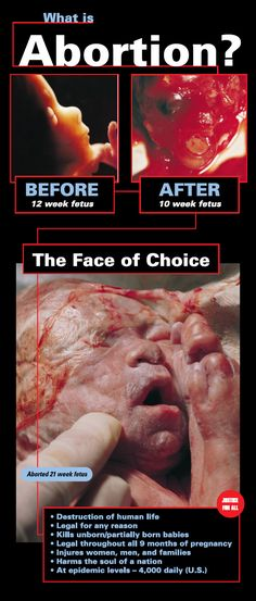 Learn how to create meaningful dialogue on the topic of abortion that will change hearts and minds at Justice For All. I Choose Life, Love Life, 10 Week Fetus, Clinton Foundation, Life Is Precious, Pregnancy Months, Pro Choice, Pro Life, Jeremiah 1