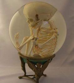 Skull fetus globe