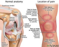 KNEE PAIN: Instability, or giving way, is also another common knee problem ...