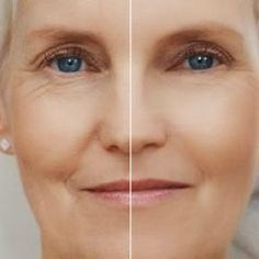 Natural Anti wrinkle remedies | Health Villas