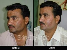 Before After Images Fairness Treatment - Skin City India