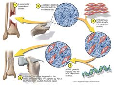 "Illustration shows the bone-tissue engineering technique developed by Cedars-Sinai investigators. ""Endogenous MSCs"" refers to stem cells from a patient's bone. The ""BMP gene"" is a gene that promotes bone repair. The Scaffold, What Is Stem, Bone Fracture, Tissue Engineering, Stem Cell Research, Cord Blood Banking, Cell Structure, Gene Therapy, Stem Cell Therapy"