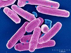 Mycobacterium avium intracellular