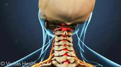 Stiff Neck? Where it comes from and How to Treat it!