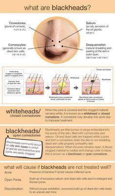 What are blackheads? #skincare