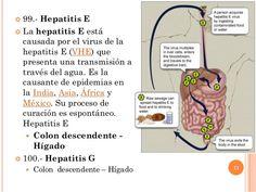  99.- Hepatitis E  La hepatitis E está causada por el virus de la hepatitis E (VHE) que presenta una transmisión a travé...