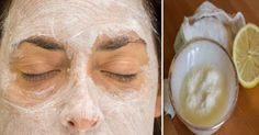 DIY beauty & Face masks : Apply This Baking Soda And Lemon Mask On Your Face And Something Amazing Will Ha… Beauty Care, Diy Beauty, Home Remedies, Natural Remedies, Baking Soda Mask, Baking Soda Benefits, Baking Soda And Lemon, Best Face Mask, Face Masks