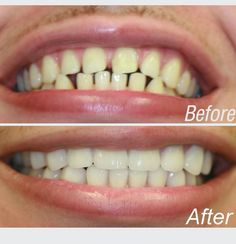 All about laser teeth whitening Dentist Nyc, Celebrity Dentist, Home Teeth Whitening Kit, Tooth Sensitivity, Stained Teeth, Cosmetic Dentistry, White Teeth, Dental, Beauty