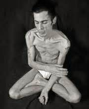 An Estimated 10 Of People With Anorexia Or Bulimia Are Males