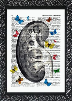 Anatomical Vintage Kidney print with butterflies by frenchprints, $5.37