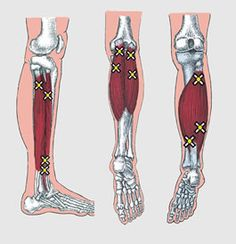 Calf Trigger Points