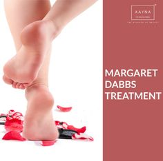 Heal those cracks with the Margaret Dabbs  Treatment at #AAYNA Vsit today!