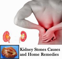Kidney Stones Causes and Home Remedies Natural Health Tips, Health And Beauty Tips, Health And Wellness, Health Care, Herbal Remedies, Health Remedies, Home Remedies, Natural Remedies, Medical Information