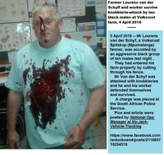 Survived murder attempt: Farmer Lourens van der Schyf, Volksrust Mpumalanga: ten blacks attacked farmer and worker with knobkieries White Lives Matter, Left Wing, African History, Farmer, Black Men, Cry, South Africa, Ethnic, Survival
