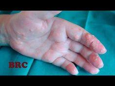 Îndepărtarea varicelor și a capilarelor: care este deosebirea dintre varice și cuperoză - Om Activ