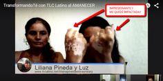 """Mira que escucho y conozco en persona los testimonios de salud con los productos de #tlc pero este testimonio de hoy me impresionó profundamente y es el de mi """"hija de negocio"""" Liliana Pineda sobre su #vitiligo No pierdas detalle..."""