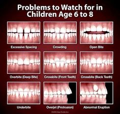 Diagram of landmarks of the teeth dental anatomy and tooth orthodontics problems ccuart Choice Image