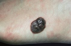 Here's how to identify a melanoma, basal cell carcinoma, squamous cell carcinoma, and more.