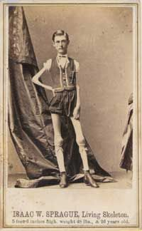 Issac W. Spraque, billed as the Living Skeleton, is shown here at age 24. He is listed on the card front as being 5 feet 4 inches and weighing only 48 pounds. It was not uncommon for height, weight, age or other stated statistics to be given as more or less than reality to emphasize the special characteristic being offered. Spraque and other Living Skeletons almost certainly suffered from some wasting disease and may have appeared on stage because they were not physically able to work.