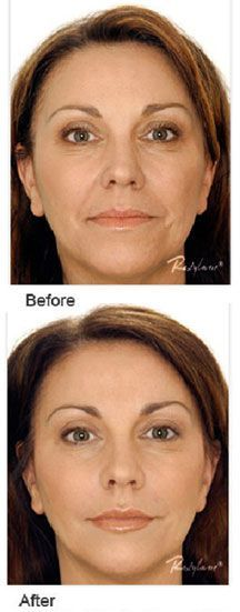 Before & After #dermal #fillers SculptMD~514.728-5783