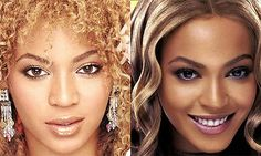 Beyonce before & after nose job