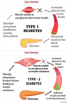 Diabetes Weight Loss and types of diabetes