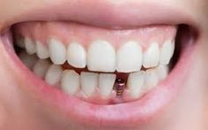 Special Dental Implants Before And After Las Vegas Dental Implants Near Me, Implant Dentist, Dental Implant Surgery, Teeth Implants, Oral Surgery, Teeth Bonding, Dental Bonding, Single Tooth Implant, Dental Bridge Cost