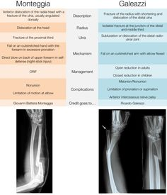 galeazzi fracture vs monteggia - Google Search