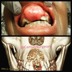 This is a 47 year old female with a asymptomatic hard swelling that has been growing in the anterior maxilla last 2 year. Biopsy confirmed a diagnosis of myxoma. Patients with an odontogenic myxoma generally notice a painless slowly enlarging expansion of the jaw with possible tooth loosening or displacement. As the tumor expands it frequently infiltrates adjacent structures. Maxillary lesions frequently enter the sinuses while mandibular tumors often extend into the ramus. #omfs…