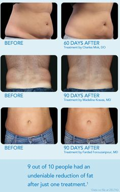 Look at these incredible CoolSculpting results! Available now at our offices