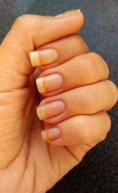 7 Dicas que mudaram as Minhas Unhas + Receitinha Caseira - How To Do Nails, My Nails, Nail Art, Skin Care, Beauty, Manicures, Room Decor, Nail Ideas, Clove Oil