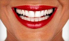 Groupon - $ 39 for a 30-Minute Teeth-Whitening Session at Dazzling White ($ 159 Value). Groupon deal price: $39.00