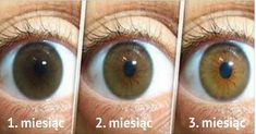 Natural Eye drops Remedy To Clear The Eyes, Reduce Cataract and Increase Your Vision In 3 Months - Here is What You Need to Do to Avoid Surgery! Natural Home Remedies, Natural Healing, Eye Sight Improvement, Eyes Problems, Eye Drops, Natural Medicine, Ayurveda, Health Remedies, Fitness Inspiration