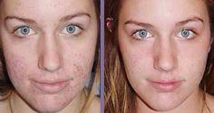 Le vinaigre de cidre peut améliorer la qualité de la peau et éclaircir votre teint. Comment ? Il stimule la circulation sanguine dans les petits vaisseaux et tonifie la peau. En effet, des études ont démontré que le vinaigre de cidre permettait de rééquilibrer le PH naturel de la peau et grâce à son pouvoir antioxydant, il ralentit le vieillissement de l'épiderme. Utilisé en lotion, le vinaigre de cidre va supprimer les cellules mortes de la pea