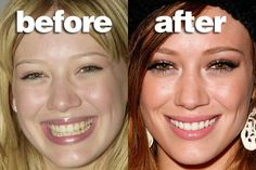 While Hilary Duff completely transformed her look through various surgeries, her new teeth are what made the biggest difference. The fancy Veneers on her upper teeth are what made her new Hollywood smile. Celebrity Teeth, Celebrity Smiles, Veneers Teeth, Dental Veneers, Taylor Swift, Beyonce, Rihanna, Perfect Teeth, Perfect Smile