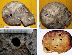 World's oldest known case of successful human brain surgery has been discovered in the site of the Harappan civilization of ancient India.