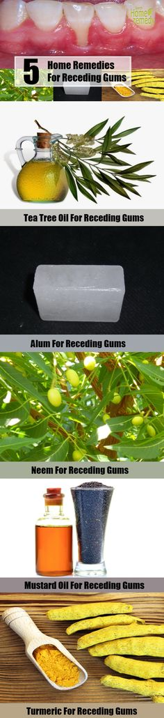 5 Home Remedies For Receding Gums