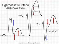 As a refresher, here are Sgarbossas criteria to identify AMI in the presence of LBBB  1.) ≥ 1 mm of concordant ST-elevation (in the same direction as the majority of the QRS complex) in at least one lead 2.) ≥ 1 mm of ST-depression in lead V1, V2 or V3 3.) ≥ 5 mm of discordant ST-elevation (opposite the majority of the QRS complex) in at least one lead  According to the original scoring algorithm, the more of these criteria that are met, the higher the probability of AMI.