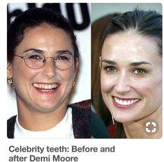 Before & After plastic surgery & teeth correction - Demi Moore Demi Moore, Celebrity Teeth, Celebrity Smiles, Celebrity Makeup, Celebrities Before And After, Celebrities Then And Now, Teeth Correction, Priyanka Chopra, Kardashian