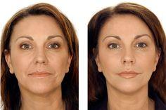 13 Best dermafillers images | Dermal fillers, Lip injections