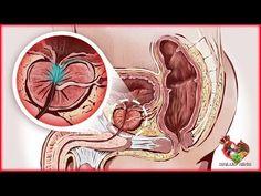 inflamación de la próstata que hacen nueva york