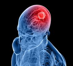 Molecular imbalance linked to brain tumour seizures