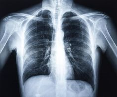 Difference Between Pulled Muscles and Bruised Ribs