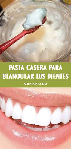 Healthy Tuna, Easy Healthy Recipes, Household Cleaning Tips, House Cleaning Tips, Pasta Casera, Root Canal Treatment, Dental Health, Oral Health, Health Care