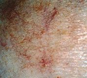 Stage 4 T-Cell Lymphoma | Cutaneous T-Cell Lymphoma Presenting as Benign Dermatoses - American ...