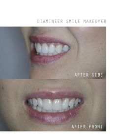 As your premier cosmetic dentist in South Africa - we are pioneers in the fields of aesthetically-driven rehabilitative dentistry and facial aesthetics Implant Dentist, Facial Aesthetics, Smile Makeover, Smile Teeth, Cape Town, Dentistry, Dental, Wedding Cape, Cosmetics