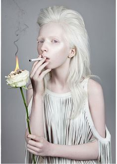 Wild Flower  - Nastya Zhidkova by Danil Golovkin -- Albino - Beauty - Portrait - Photography