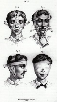 Bandages, dressings and appereils by Dr. Goffres; drawings by Mr. Cornuel, engraving on steel by Mr. Davesne