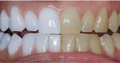 Voici comment blanchir ses dents : À essayer absolument !